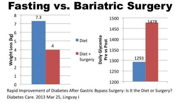Le-jeûne-est-il-plus-efficace-que-la-chirurgie-bariatrique-sante-dacier